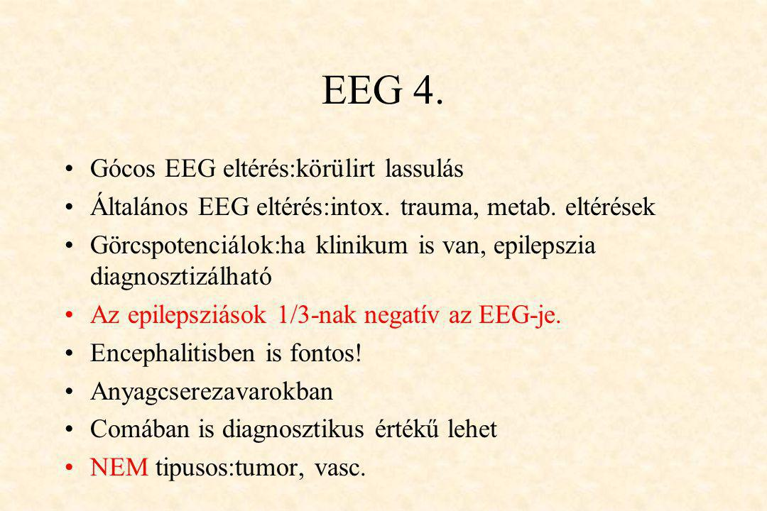 EEG 4. Gócos EEG eltérés:körülirt lassulás