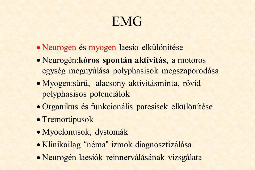 EMG Neurogen és myogen laesio elkülönitése