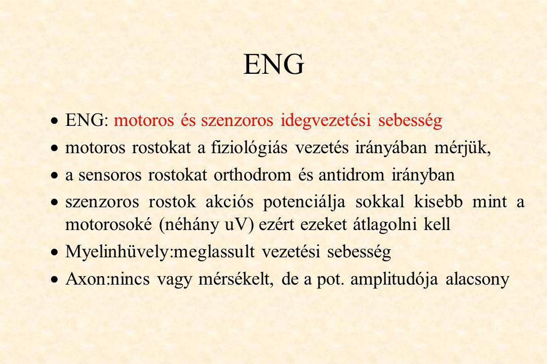 ENG ENG: motoros és szenzoros idegvezetési sebesség