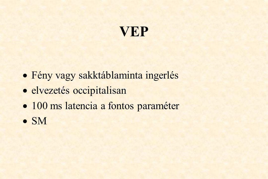 VEP Fény vagy sakktáblaminta ingerlés elvezetés occipitalisan