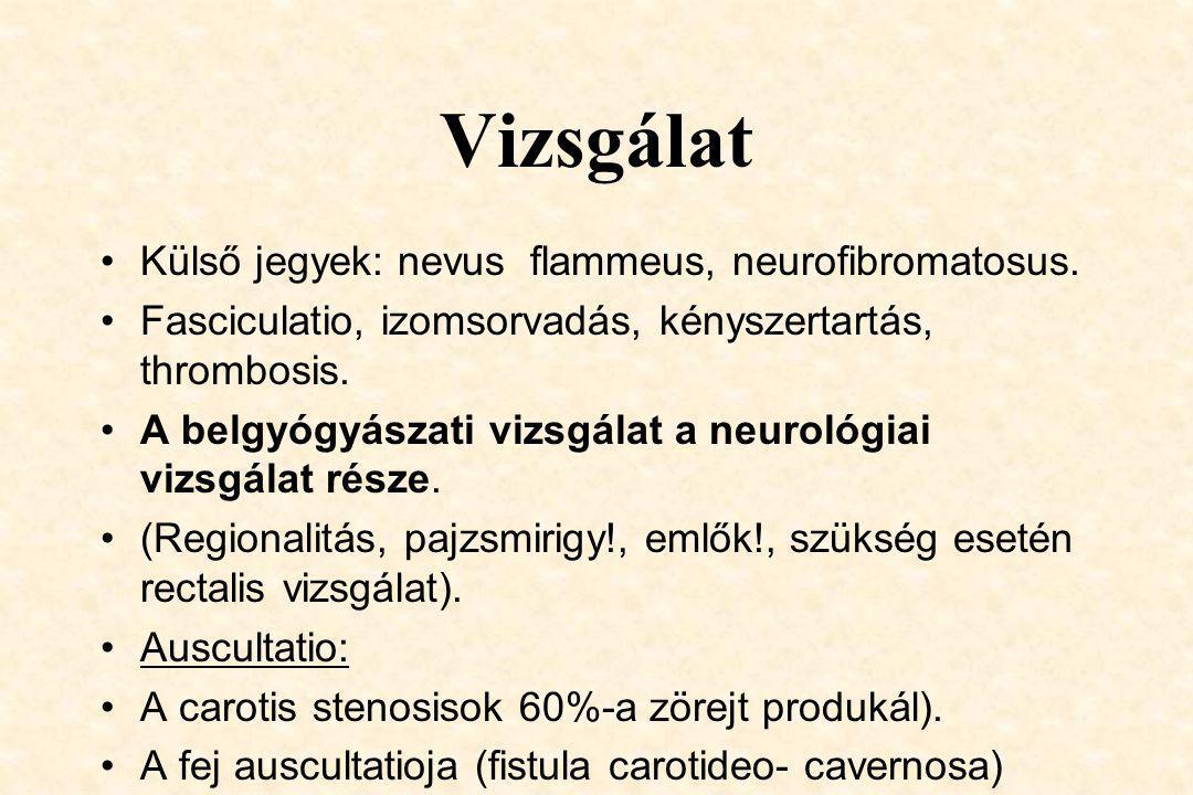 Vizsgálat Külső jegyek: nevus flammeus, neurofibromatosus.
