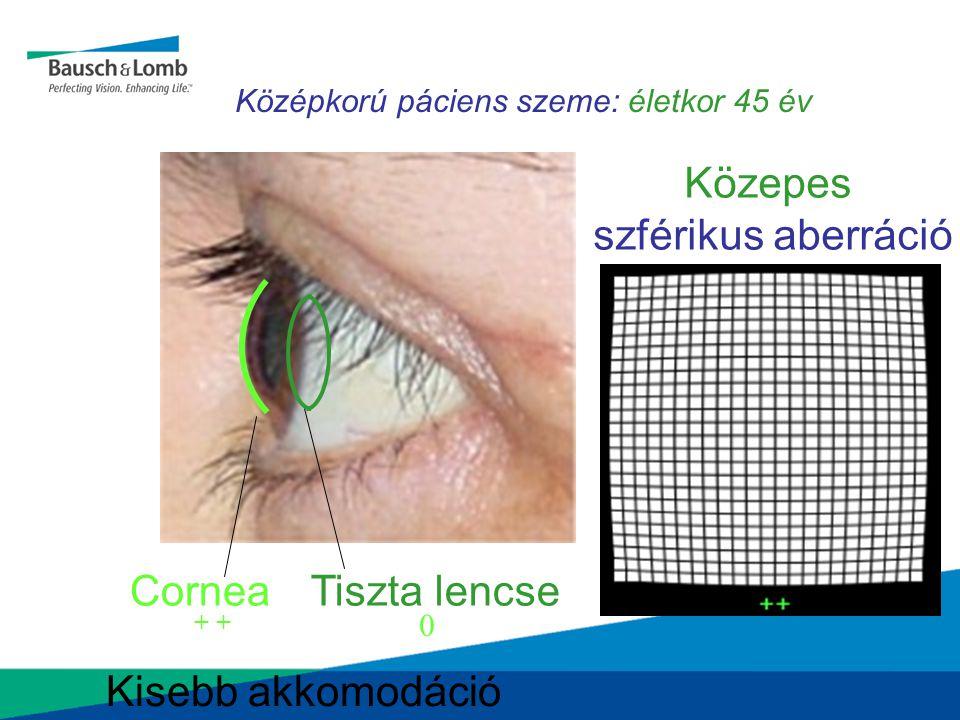 Középkorú páciens szeme: életkor 45 év