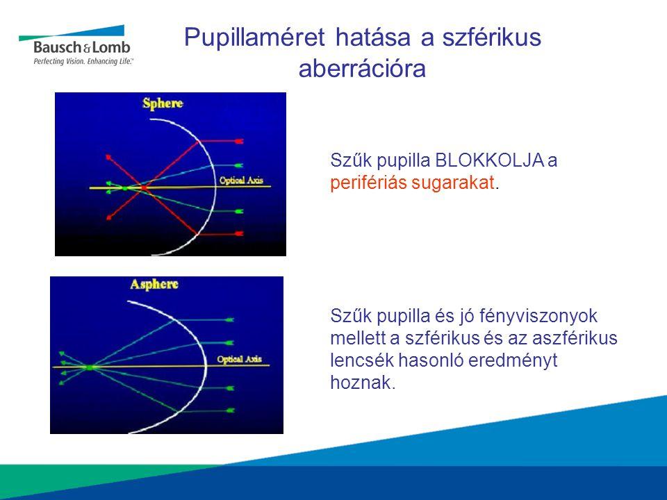 Pupillaméret hatása a szférikus aberrációra