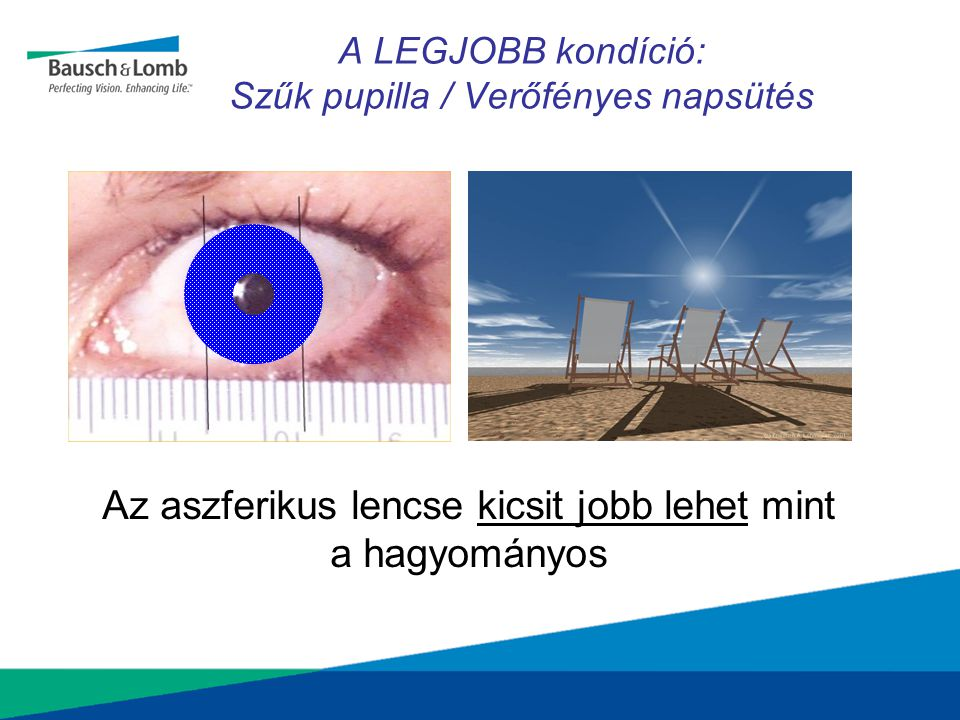 A LEGJOBB kondíció: Szűk pupilla / Verőfényes napsütés