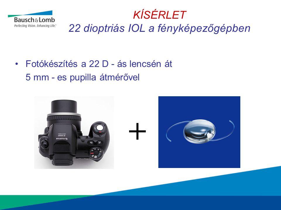 KÍSÉRLET 22 dioptriás IOL a fényképezőgépben