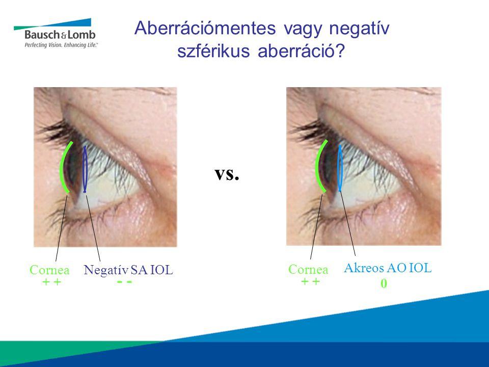 Aberrációmentes vagy negatív szférikus aberráció