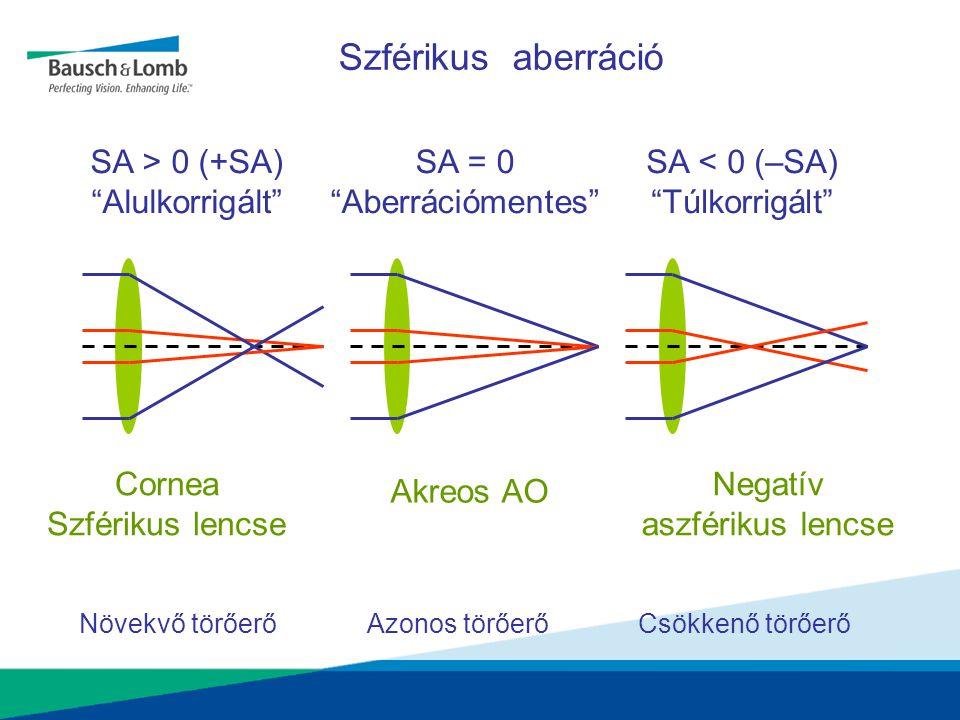 Negatív aszférikus lencse