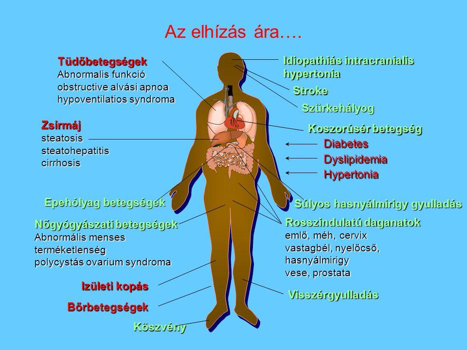 Az elhízás ára…. Tüdőbetegségek Idiopathiás intracranialis hypertonia