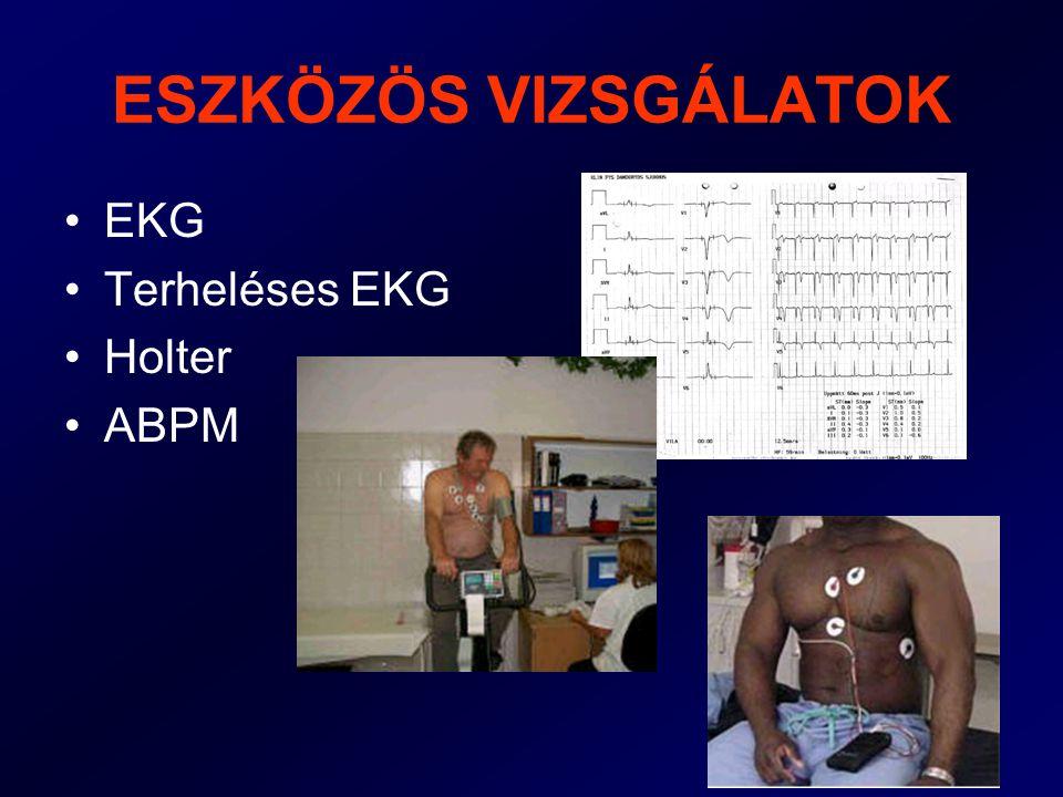 ESZKÖZÖS VIZSGÁLATOK EKG Terheléses EKG Holter ABPM