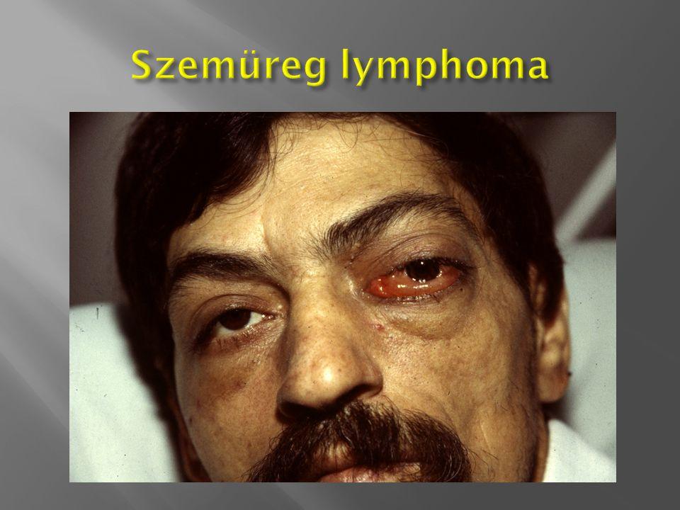 Szemüreg lymphoma