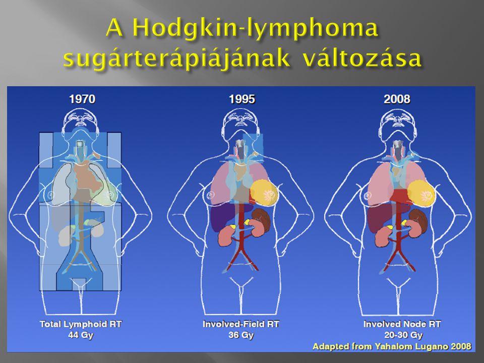 A Hodgkin-lymphoma sugárterápiájának változása