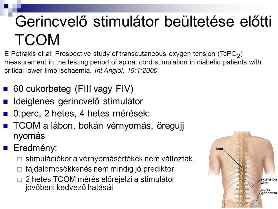 Gerincvelő stimulátor beültetése előtti TCOM