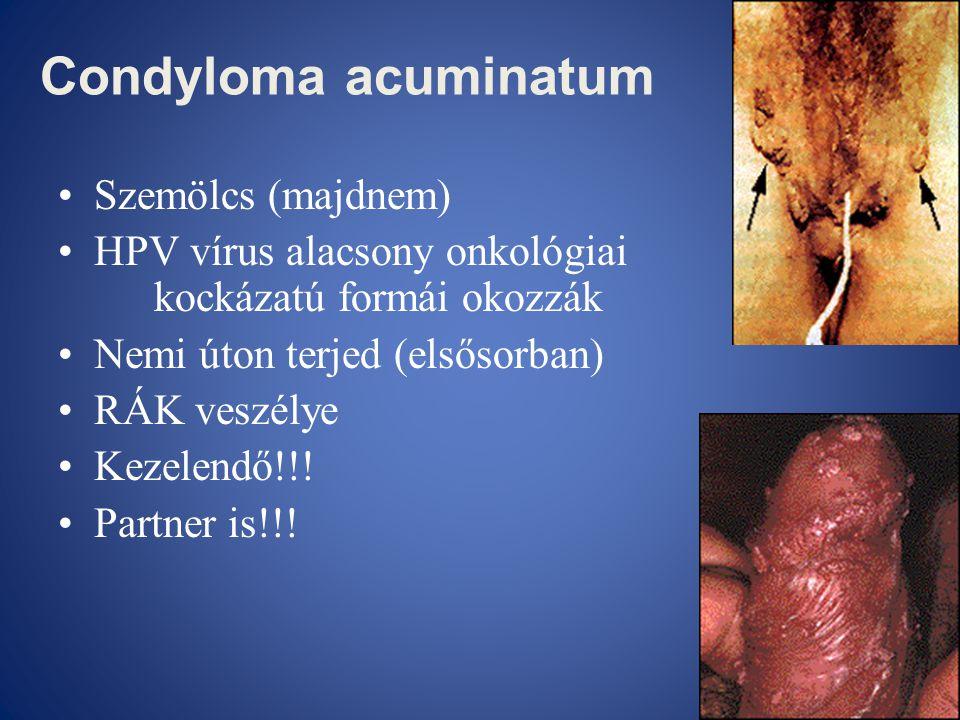 Condyloma acuminatum Szemölcs (majdnem)