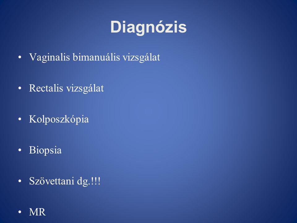 Diagnózis Vaginalis bimanuális vizsgálat Rectalis vizsgálat