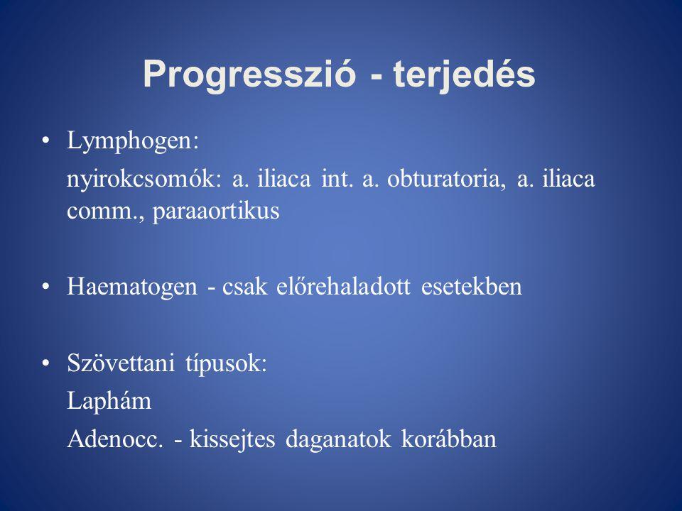 Progresszió - terjedés