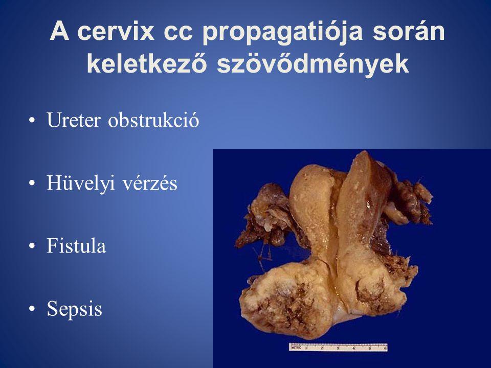 A cervix cc propagatiója során keletkező szövődmények