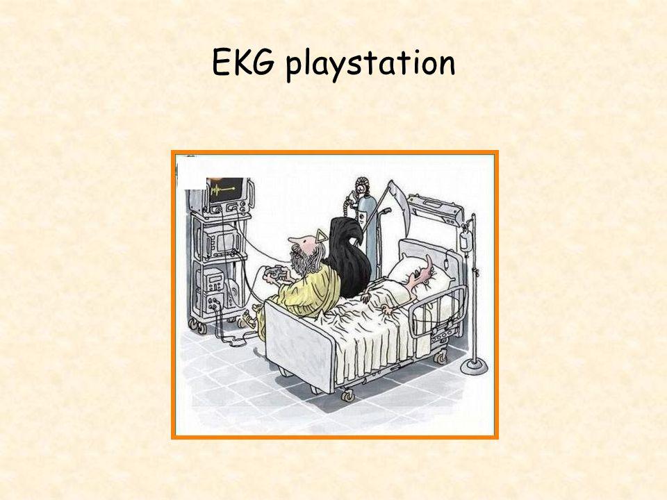 EKG playstation