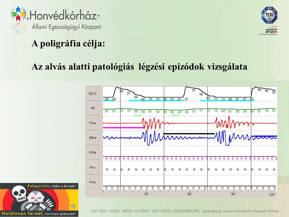 A poligráfia célja: Az alvás alatti patológiás légzési epizódok vizsgálata