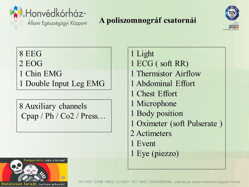 A poliszomnográf csatornái