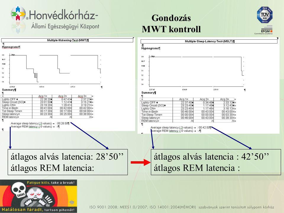 Gondozás MWT kontroll átlagos alvás latencia: 28'50'' átlagos REM latencia: átlagos alvás latencia : 42'50''