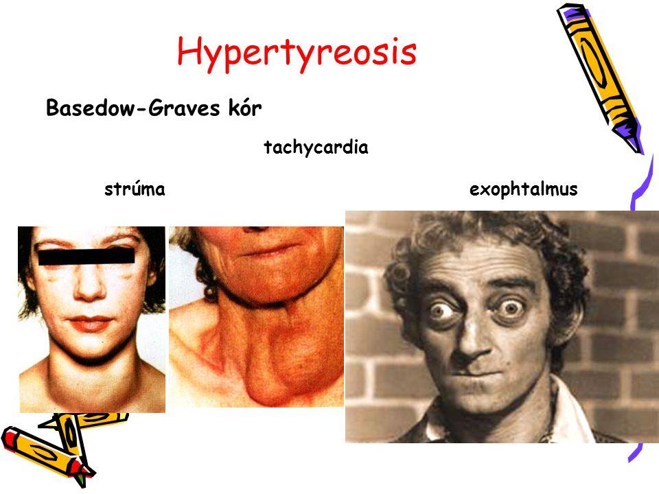 Hypertyreosis Basedow-Graves kór tachycardia strúma exophtalmus