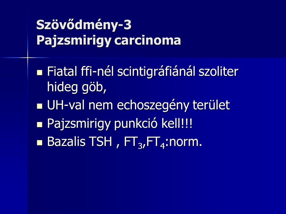 Szövődmény-3 Pajzsmirigy carcinoma