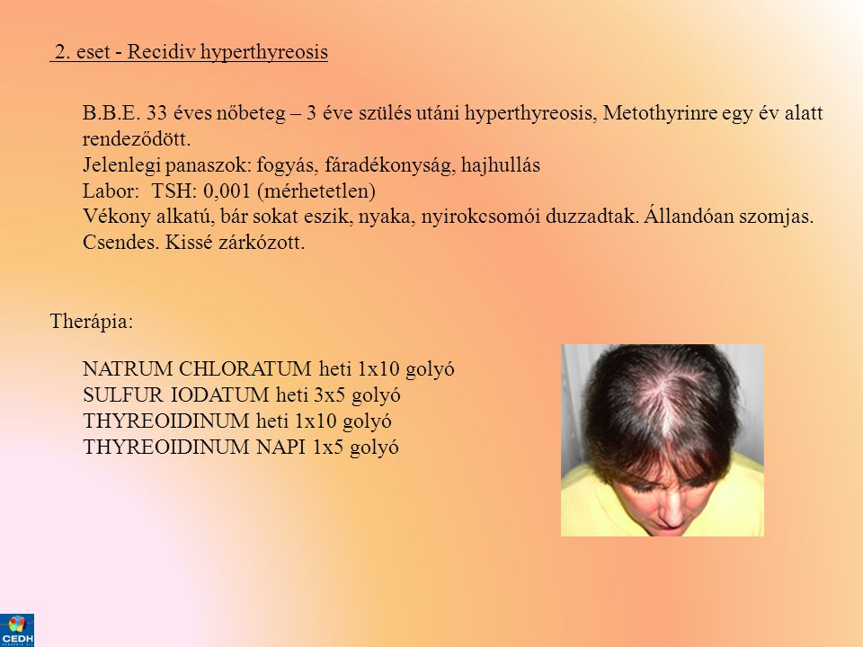 2. eset - Recidiv hyperthyreosis