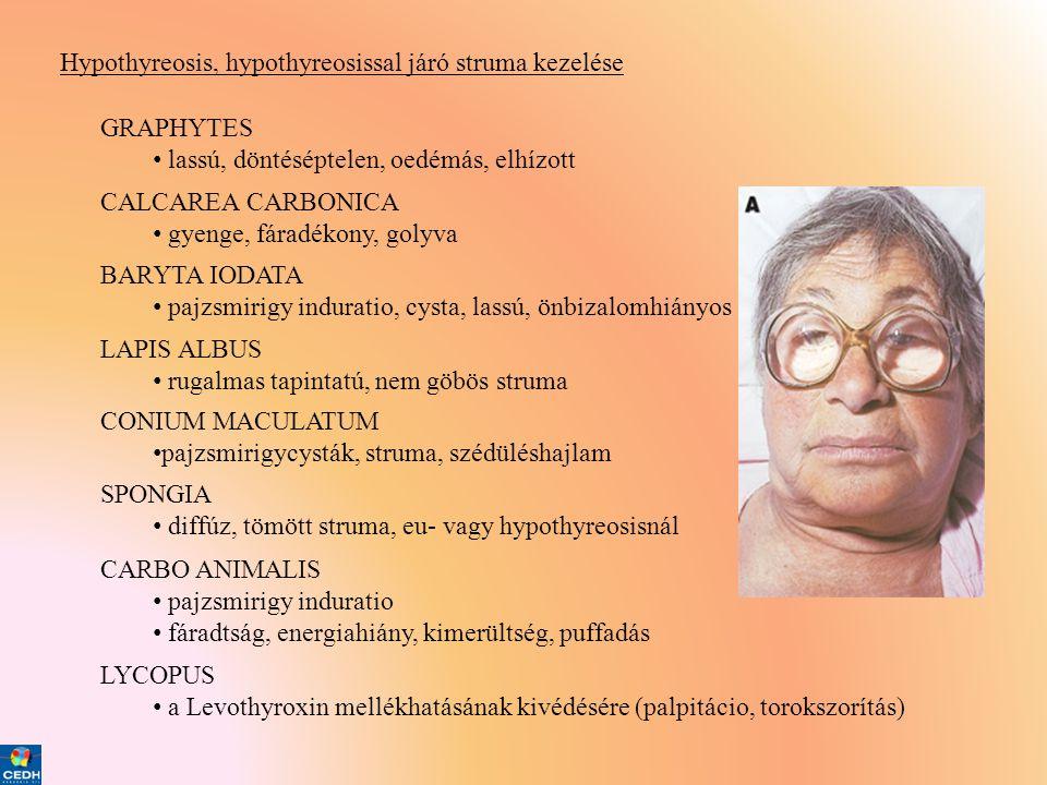 Hypothyreosis, hypothyreosissal járó struma kezelése