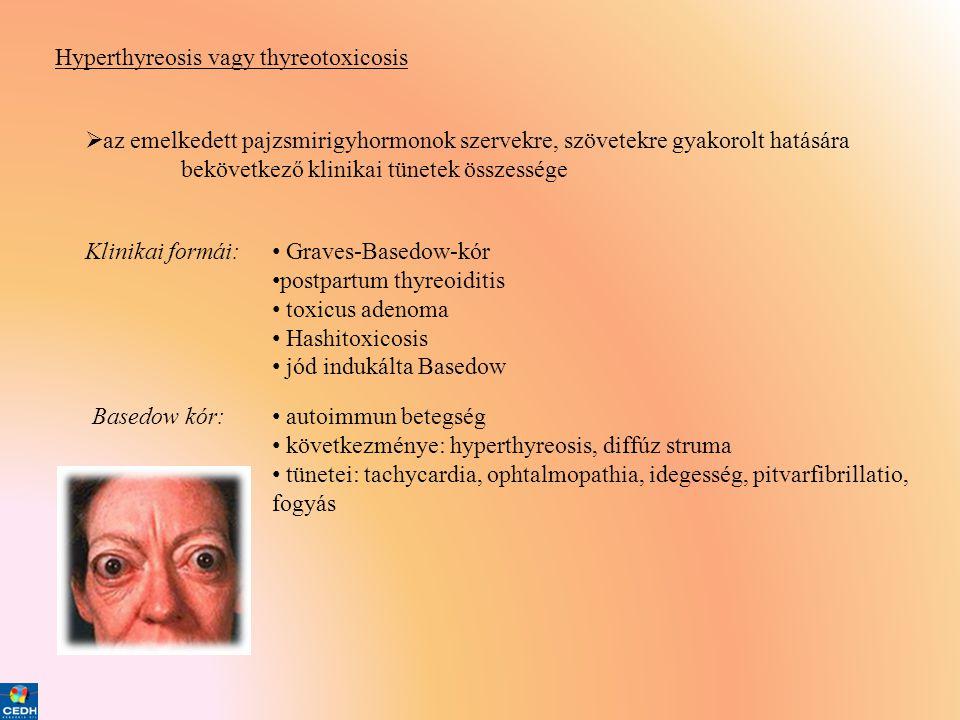Hyperthyreosis vagy thyreotoxicosis