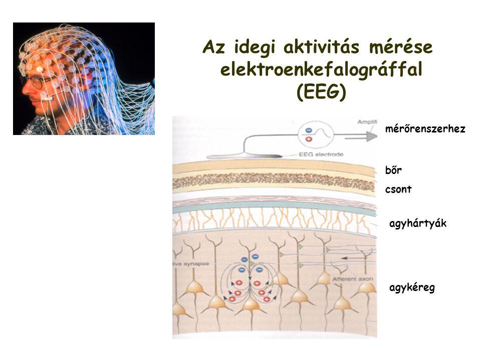 Az idegi aktivitás mérése elektroenkefalográffal