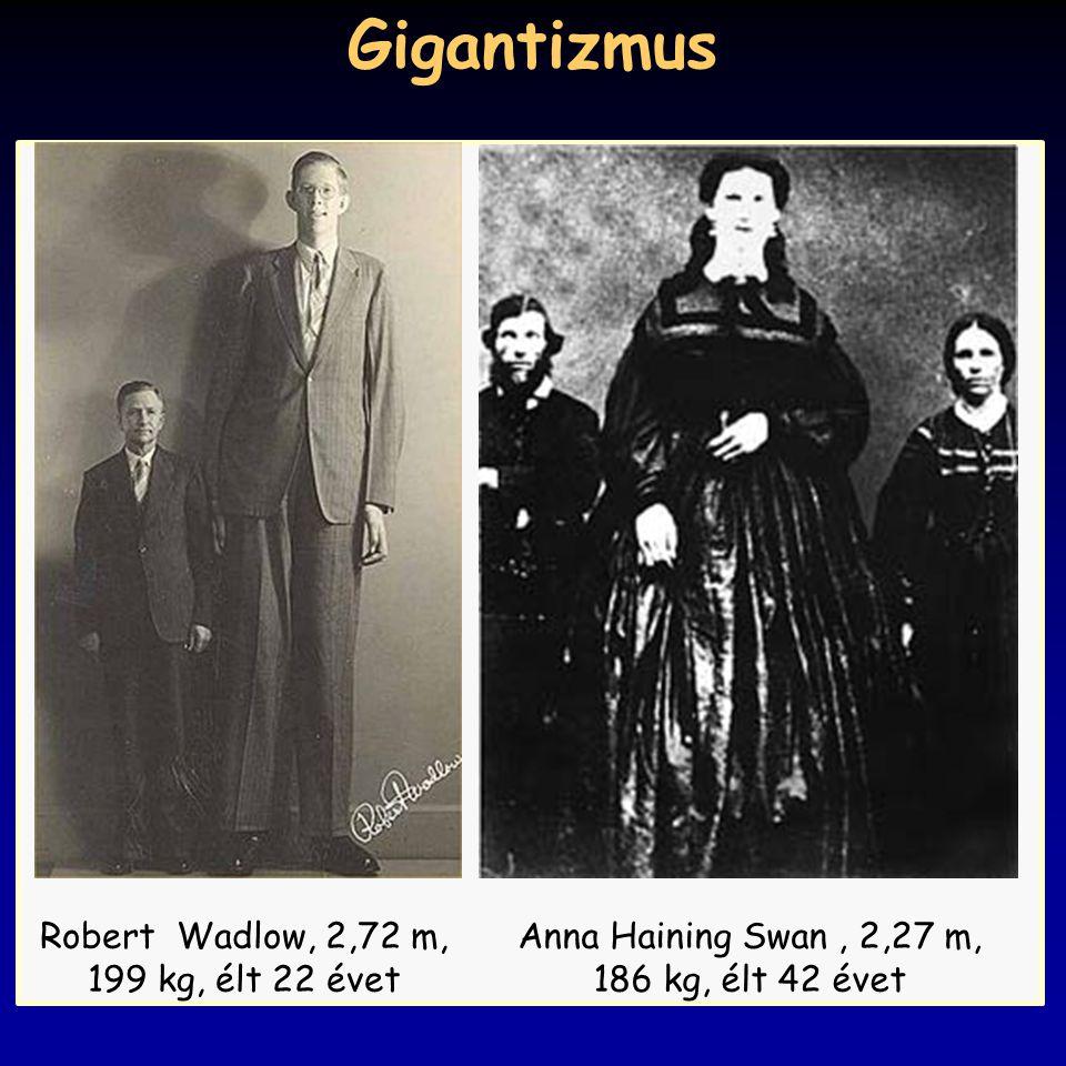 Gigantizmus Robert Wadlow, 2,72 m, 199 kg, élt 22 évet