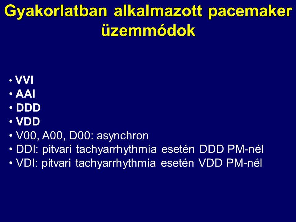Gyakorlatban alkalmazott pacemaker üzemmódok