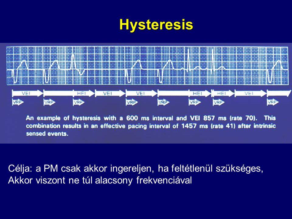Hysteresis Célja: a PM csak akkor ingereljen, ha feltétlenül szükséges, Akkor viszont ne túl alacsony frekvenciával.