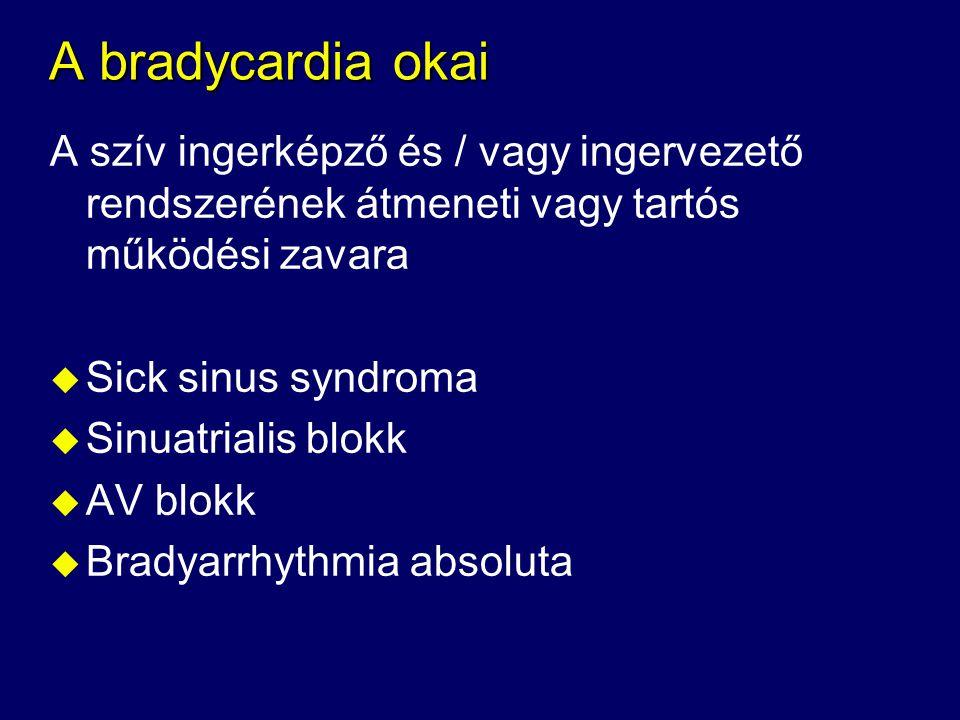 A bradycardia okai A szív ingerképző és / vagy ingervezető rendszerének átmeneti vagy tartós működési zavara.