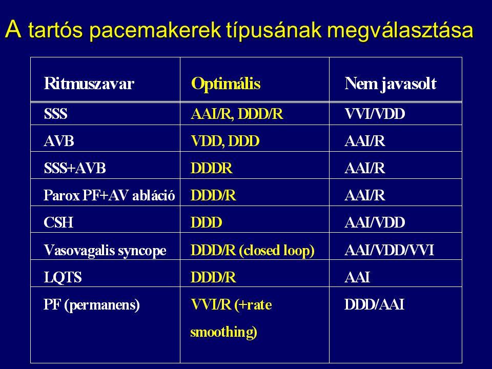 A tartós pacemakerek típusának megválasztása