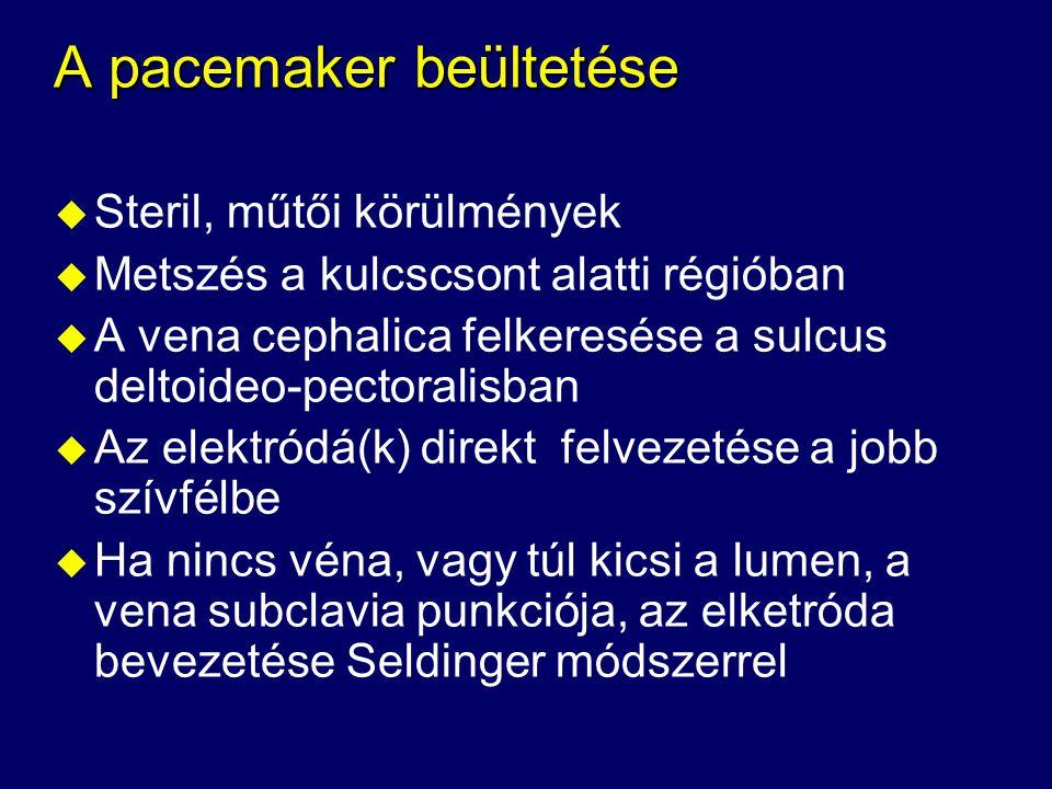A pacemaker beültetése
