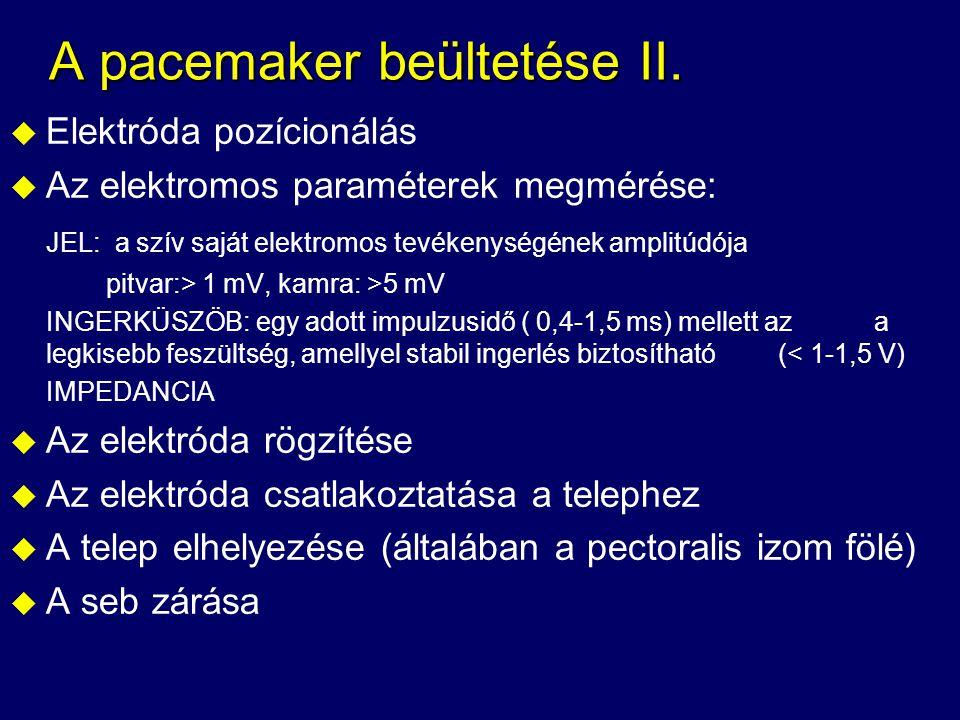 A pacemaker beültetése II.