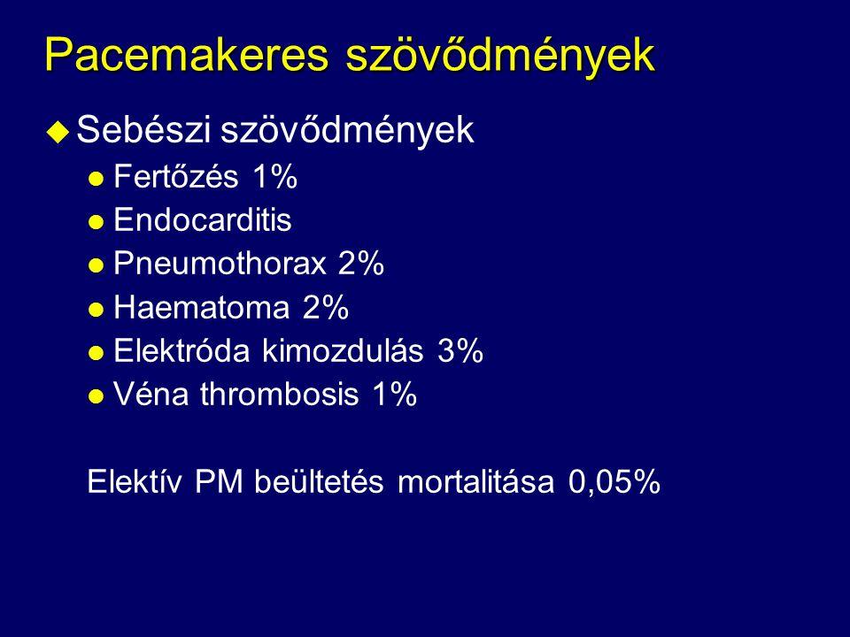 Pacemakeres szövődmények