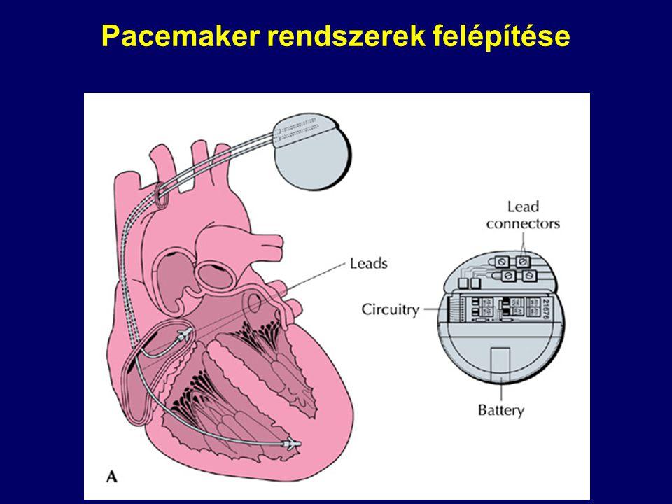 Pacemaker rendszerek felépítése