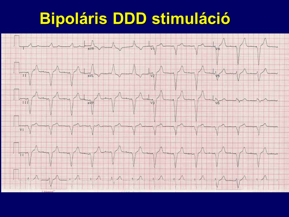 Bipoláris DDD stimuláció