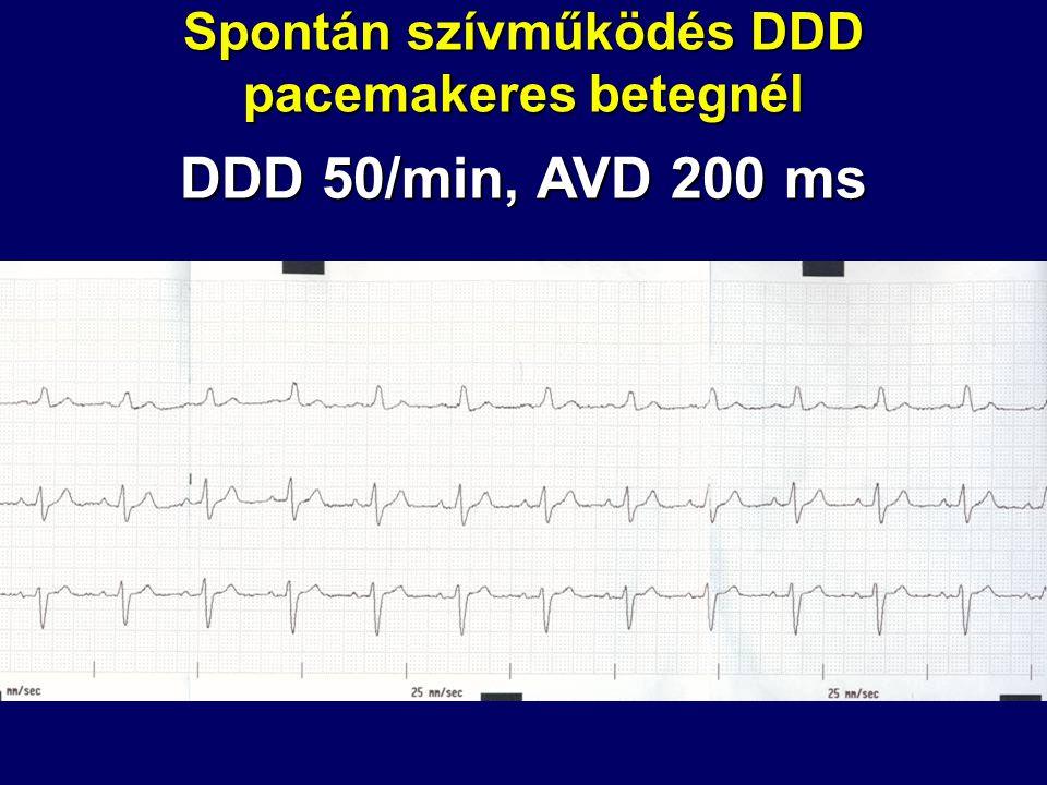 Spontán szívműködés DDD pacemakeres betegnél
