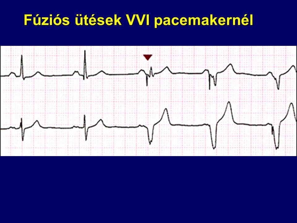 Fúziós ütések VVI pacemakernél