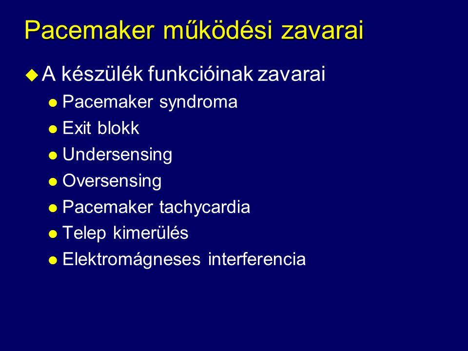 Pacemaker működési zavarai