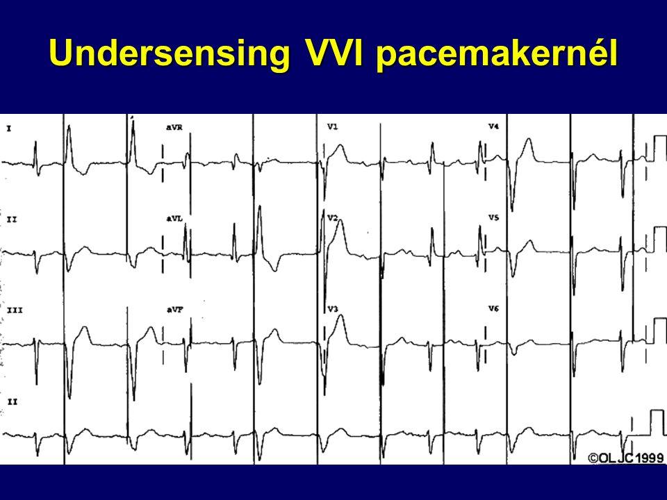 Undersensing VVI pacemakernél