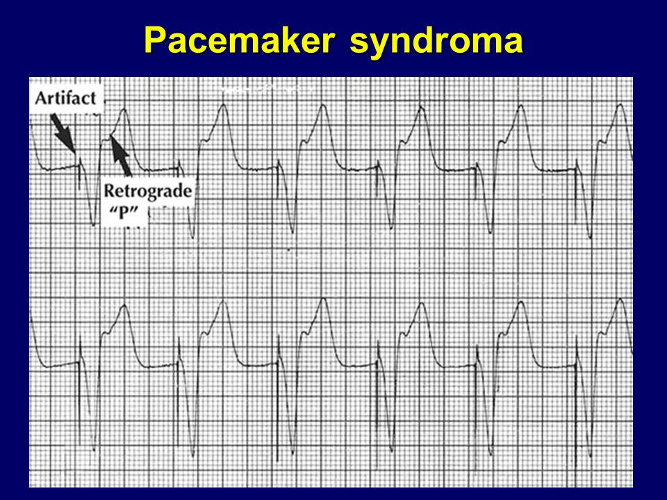 Pacemaker syndroma