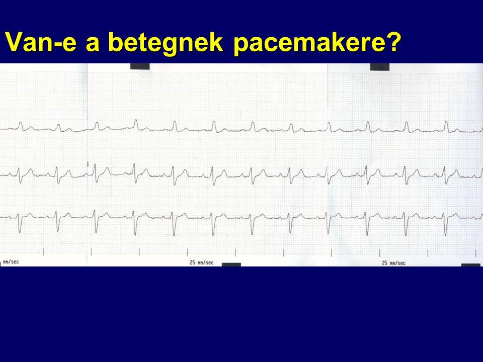 Van-e a betegnek pacemakere