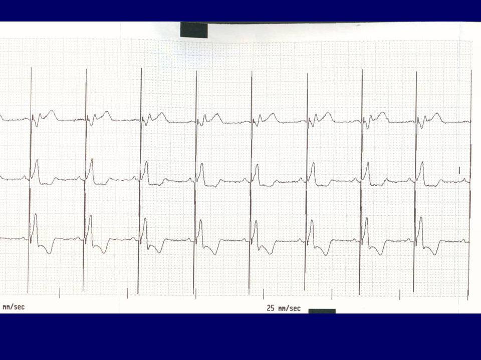 VDD PM (single lead vagy DDD pitvari sense mellett, ST-T eltérések a QRS fő kitérési irányával ellentétesek