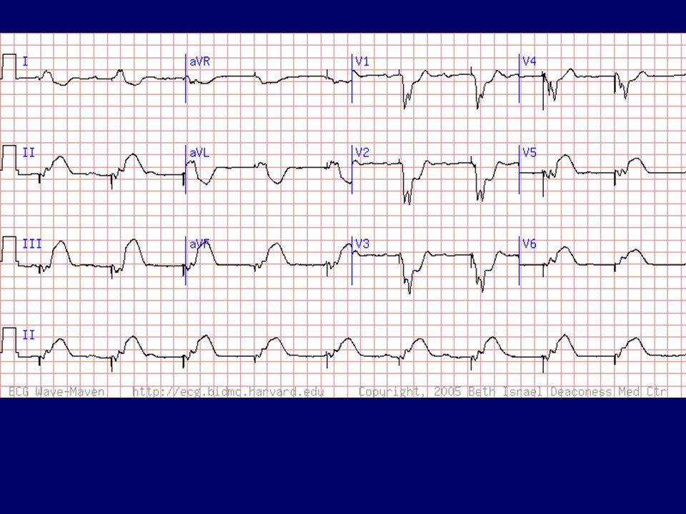 Akut infero-posterior infarctus VVI ingerlés mellett