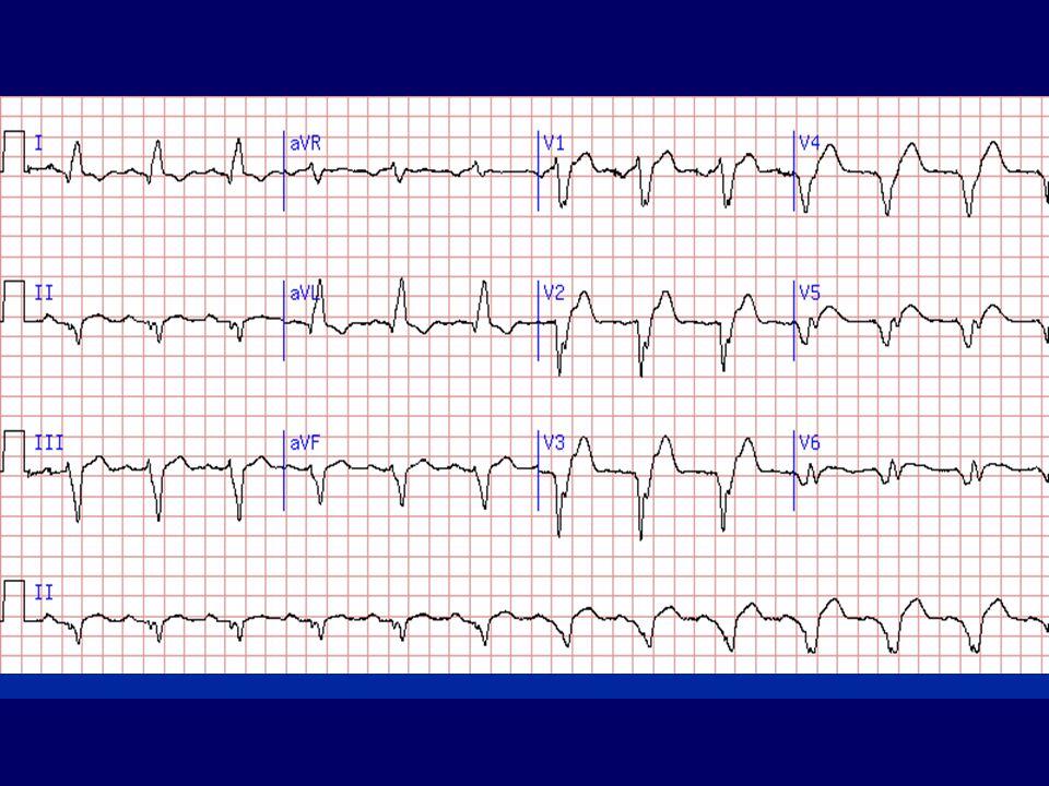 DDD Pm+ régi anterior MI (Q V1-V6), Cabrera szerű jel ( megtöretés a mellkasi elv QRS-ben)