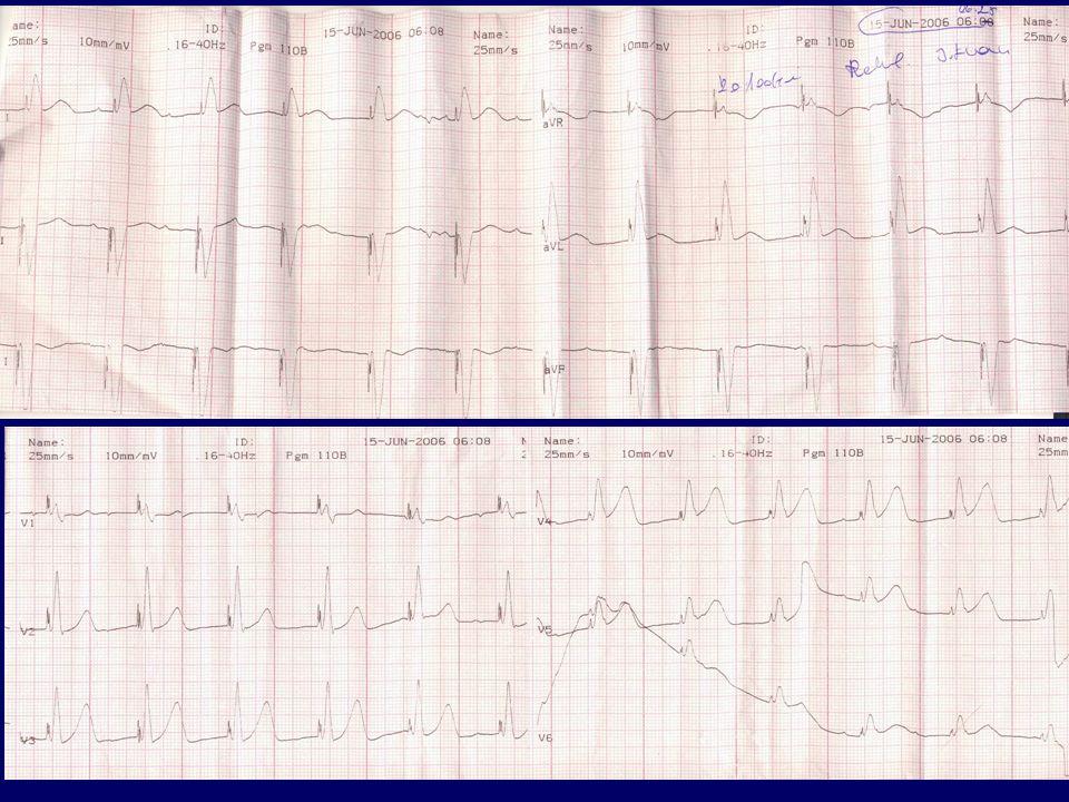 Kamrai ingerlés mellett I-aVL-ben ST eleváció, V4-6-ban is sejthető